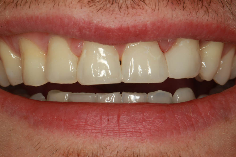 Crowns after