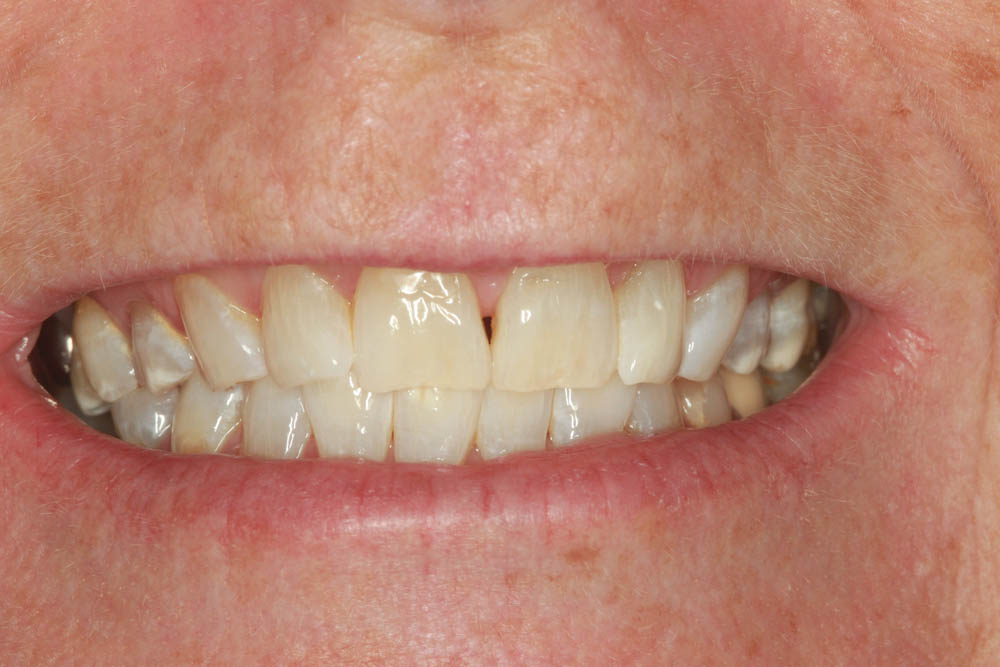 Whitening after