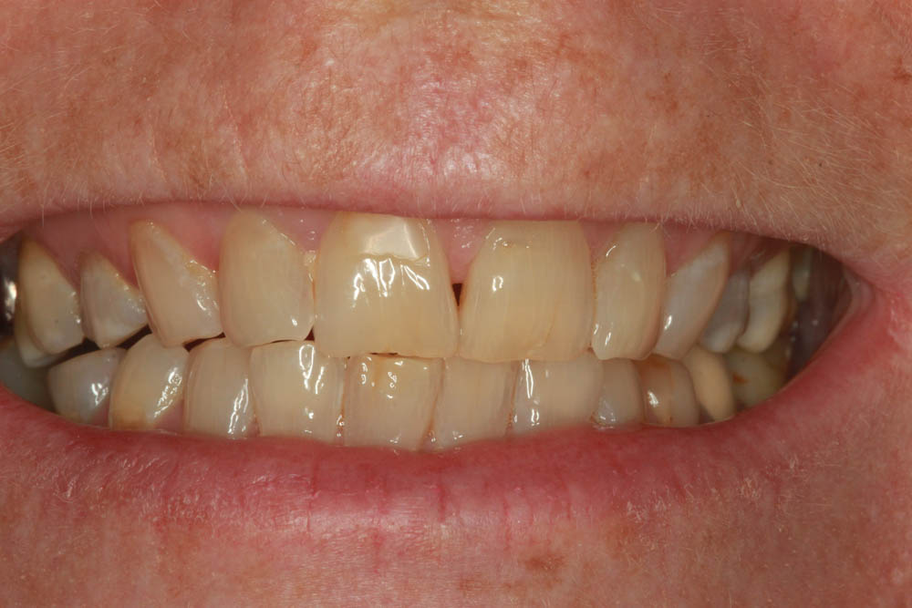 Whitening before